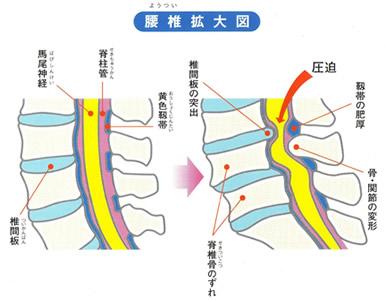 腰部脊柱管狭窄症 | とも鍼灸整...